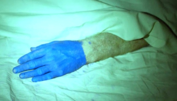 Blue hand of dead body