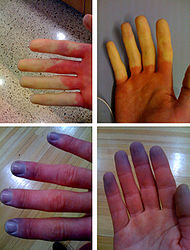 190px-Raynaud's_Syndrome